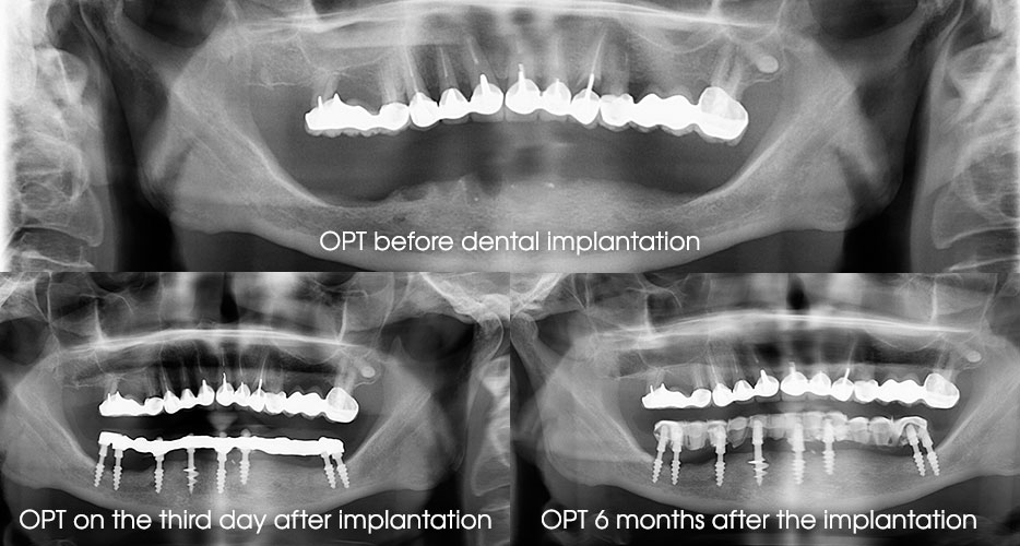 Fig. 10. Roentgenology before and on the fixed dates after the dental implantation.