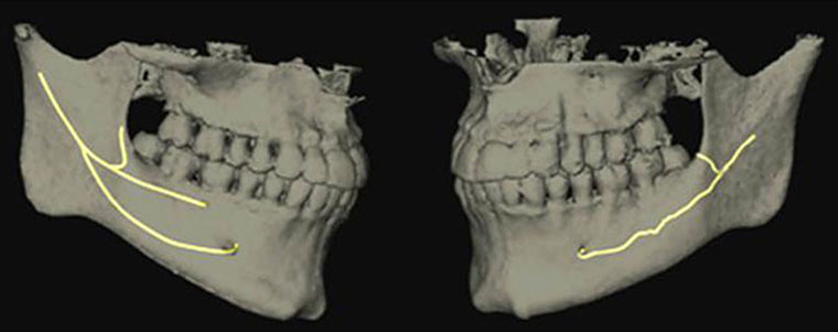 Fig. 1.Reconstruction with nerve tracking showing the bifid and trifid mandibular canals (Mizbah K. et al., 2012) [40].