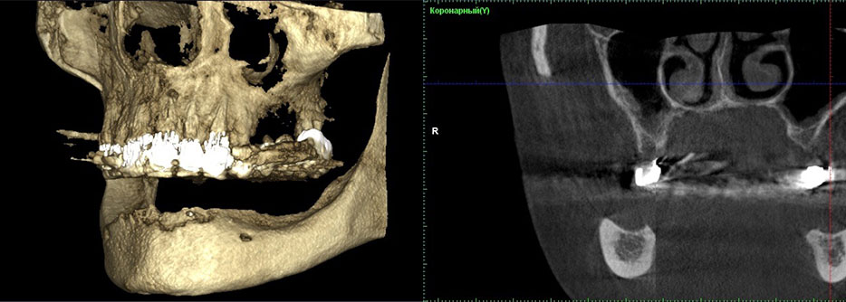 Fig. 1. The computer tomography of the side area of mandible before treatment