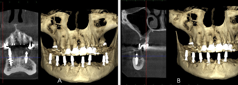 Fig. 3. The computer tomography after the implant insertion (A – central area, B – right side)