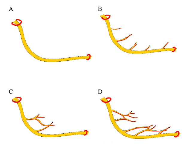 Fig. 2.Branching patterns of the inferior alveolar nerve: classification by Kieser et al. [41]: A - single unbranched nerve; B - series of individual branches to the superior border of the mandible; C - fine molar plexus; D - proximal and distal nerve plexus.